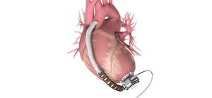 Global Ventricular Assist Devices Market Is Expected To Reach US$ 2,323.41 Mn By 2025 | Credence Research